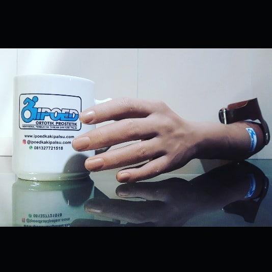 Tangan Palsu / Tiruan untuk Pasca Amputasi Bawah Siku (Transradial Amputee)