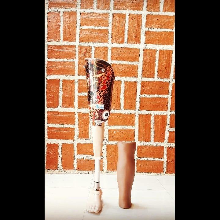 Transfemoral prosthesis dengan soket Batik | Kaki Palsu