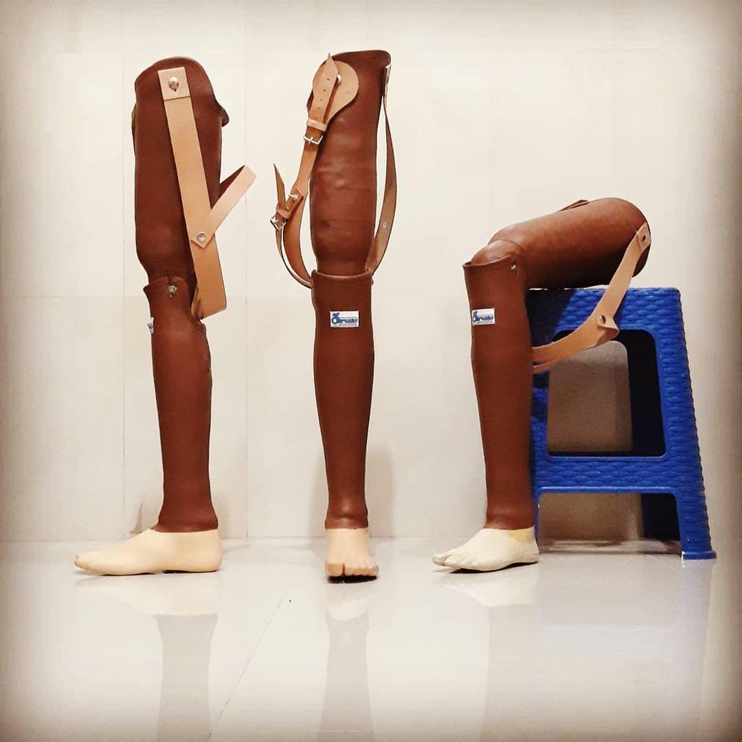 Exoskeletal Transfemoral Prosthesis Kaki palsu / kaki tiruan untuk pasien pasca amputasi atas lutut