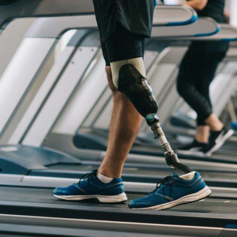 prosthetic-leg-696x464
