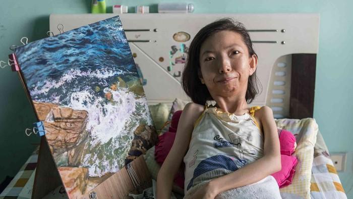 Zhang Junli, Pelukis Handal Penderita Rheumatoid Arthritis