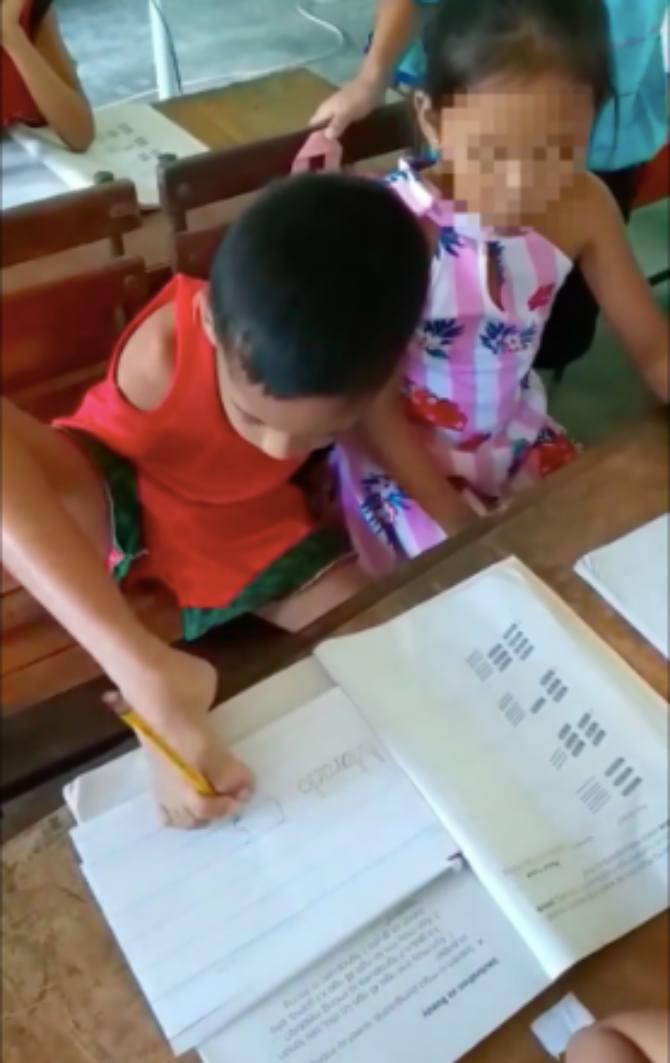 Marcielo, Bocah Lelaki  8 Tahun Tanpa Tangan