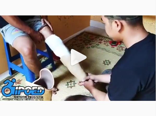 cara memasang kaki palsu secara mandiri