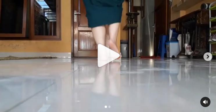 Video Leg Length Discrepancy