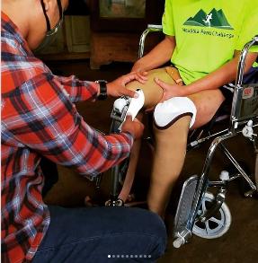 Kaki Prostesis Atas Lutut
