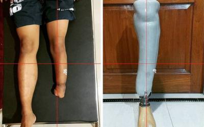 Bench Alignment Kaki Prostesis Bawah Lutut