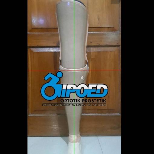 Eksoskeletal Kaki Prostesis Tepat Lutut