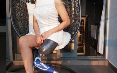 Rosalina Berkaki Satu Sukses Jadi Model di Singapura