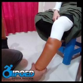 Kaki Prostesis untuk Ibu Hamil